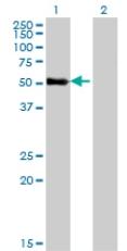 Western blot - ZNF232  antibody (ab77731)