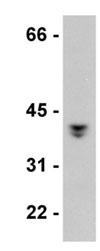 Western blot - LCMT1 antibody [4A4] (ab77754)