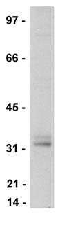 Western blot - LAT antibody [11B.12] (ab77755)