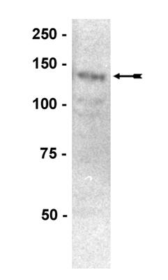 Western blot - PTP alpha antibody (ab77792)