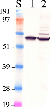 Western blot - RPE65 antibody [401.8B11.3D9] (ab78036)