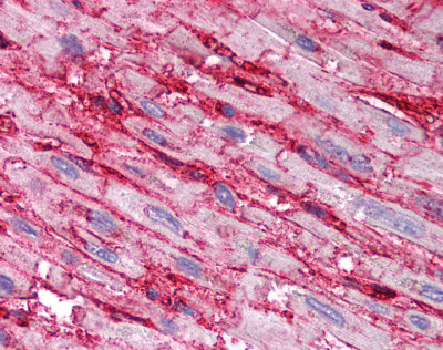 Immunohistochemistry (Formalin/PFA-fixed paraffin-embedded sections) - CD36 antibody (ab78054)