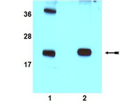 Western blot - Rac1 antibody (ab78139)