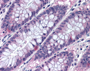 Immunohistochemistry (Formalin/PFA-fixed paraffin-embedded sections) - MTSS1 antibody (ab78161)