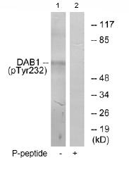 Western blot - Dab1 (phospho Y232) antibody (ab78200)