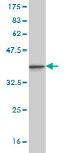 Western blot - Neurogenin3 antibody (ab78350)