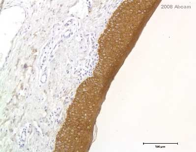 Immunohistochemistry (Formalin/PFA-fixed paraffin-embedded sections) - pan Keratin antibody [80] (ab8068)