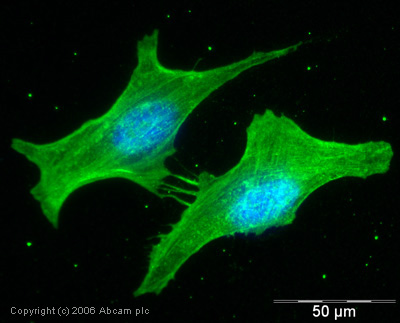 Immunocytochemistry/ Immunofluorescence - beta Actin antibody - Loading Control (ab8227)