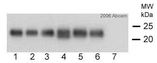 Western blot - TNNI1 antibody [12F10] (ab8293)