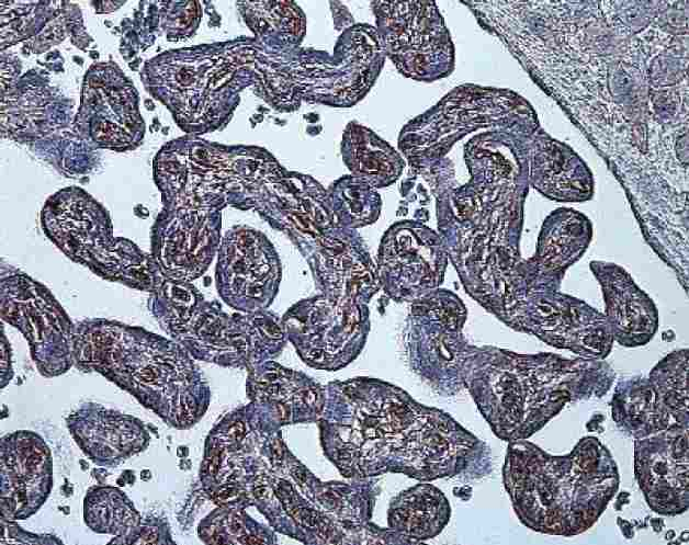 Immunohistochemistry (Formalin/PFA-fixed paraffin-embedded sections) - Anti-HIF-1-alpha [ESEE122] antibody (ab8366)