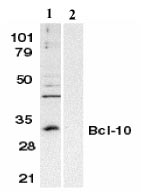 Western blot - Bcl10 antibody (ab8398)