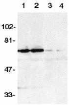 Western blot - DR6 antibody (ab8417)