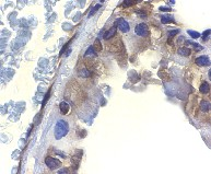 Immunohistochemistry (Formalin/PFA-fixed paraffin-embedded sections) - ICAD  antibody (ab8424)