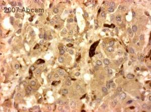 Immunohistochemistry (Formalin/PFA-fixed paraffin-embedded sections) - Dopamine antibody (ab8888)