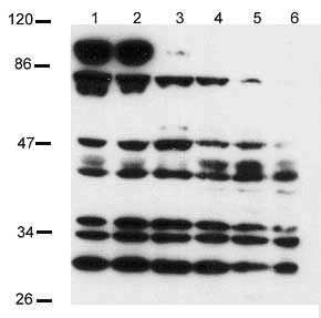 Western blot - Notch 2 intracellular domain antibody (ab8927)
