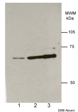 Western blot - Lamin A + C antibody [131C3] - Nuclear Envelope Marker (ab8984)