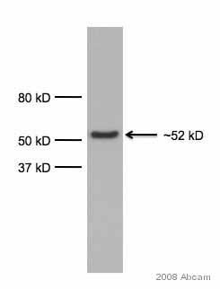 Western blot - alpha 1 Antitrypsin antibody [G11] (ab9400)