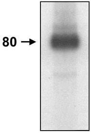 Western blot - CD44 antibody [MEM-263] (ab9524)