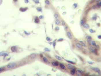 Immunohistochemistry (Formalin/PFA-fixed paraffin-embedded sections) - IGF2 antibody (ab9574)
