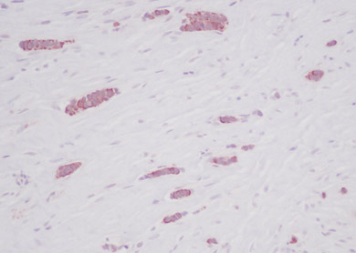 Immunohistochemistry (Formalin/PFA-fixed paraffin-embedded sections) - RANTES antibody (ab9679)