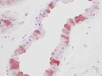 Immunohistochemistry (Formalin/PFA-fixed paraffin-embedded sections) - EGF antibody (ab9695)