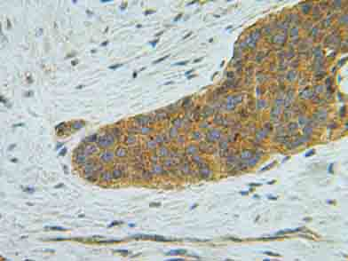 Immunohistochemistry (Formalin/PFA-fixed paraffin-embedded sections) - IP10 antibody (ab9807)