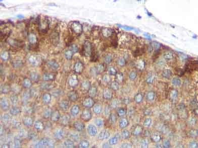 Immunohistochemistry (Formalin/PFA-fixed paraffin-embedded sections) - MCP1 antibody (ab9858)