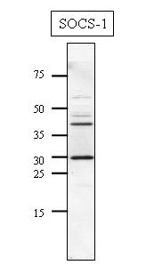 Western blot - SOCS1  antibody (ab9870)