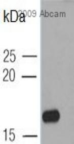 Western blot - Hepatitis B Virus X antigen antibody [3F6-G10] (ab235)