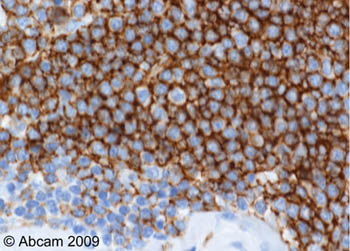 Immunohistochemistry (Formalin/PFA-fixed paraffin-embedded sections) - CD35 antibody [E11] (ab25)