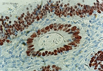 Immunohistochemistry (Formalin/PFA-fixed paraffin-embedded sections) - p53 antibody [PAb 240] (ab26)
