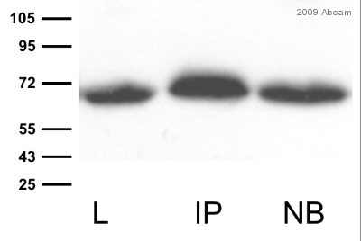 Immunoprecipitation - GFP antibody (ab290)