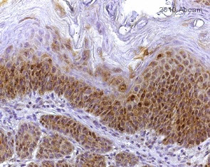 Immunohistochemistry (Formalin/PFA-fixed paraffin-embedded sections) - PKC antibody [MC5] (ab31)