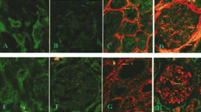 Immunohistochemistry (Formalin/PFA-fixed paraffin-embedded sections) - N epsilon gamma glutamyl Lysine antibody [153-81D4] (ab424)