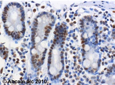 Immunohistochemistry (Formalin/PFA-fixed paraffin-embedded sections)-FEN1 antibody [4E7](ab462)