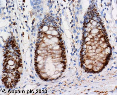 Immunohistochemistry (Formalin/PFA-fixed paraffin-embedded sections)-DNA Ligase I antibody [10H5](ab615)