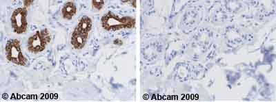 Immunohistochemistry (Formalin/PFA-fixed paraffin-embedded sections) - Cytokeratin 18 antibody [DA-7] (ab669)