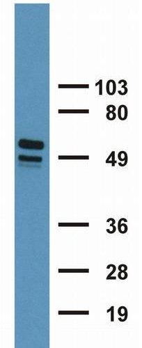 Western blot - Cytokeratin 7+17 antibody [C-46] (ab670)