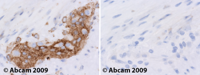 Immunohistochemistry (Formalin/PFA-fixed paraffin-embedded sections) - Anti-non-muscle Myosin IIB antibody [3H2] (ab684)