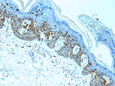 Immunohistochemistry (Formalin/PFA-fixed paraffin-embedded sections) - Anti-Melanoma antibody [HMB45  + DT101 + BC199 + T311] (ab733)
