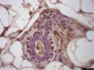 Immunohistochemistry (Formalin/PFA-fixed paraffin-embedded sections) - anti-p63 antibody [BC4A4] (ab735)