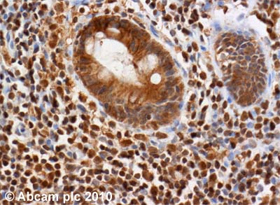 Immunohistochemistry (Formalin/PFA-fixed paraffin-embedded sections) - ATM antibody [2C1 (1A1)] (ab78)