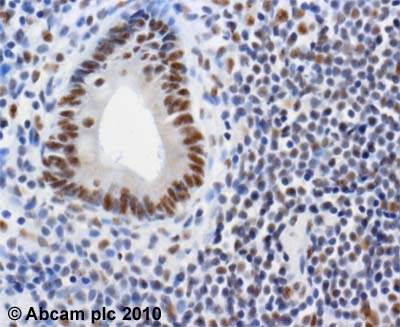 Immunohistochemistry (Formalin/PFA-fixed paraffin-embedded sections) - Anti-KAT13A / SRC1 antibody [1135/H4] - ChIP Grade (ab84)