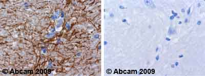 Immunohistochemistry (Formalin/PFA-fixed paraffin-embedded sections) - GFAP antibody - Astrocyte Marker, prediluted (ab929)