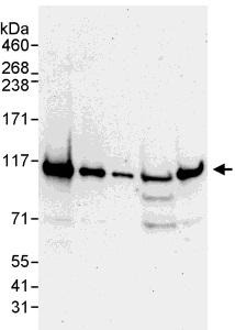 Western blot - Anti-Rad21 antibody - ChIP Grade (ab992)