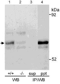 Immunoprecipitation - Anti-Glucose 6 Phosphate Dehydrogenase antibody (ab993)