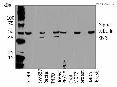 Western blot - Anti-HMW Kininogen antibody [C11C1] (ab1004)