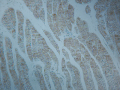 Immunohistochemistry (Formalin/PFA-fixed paraffin-embedded sections) - Anti-alpha sarcomeric Actin antibody [5C5], prediluted (ab1321)