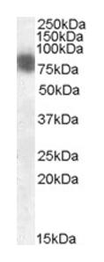 Western blot - Cortactin antibody (ab1374)