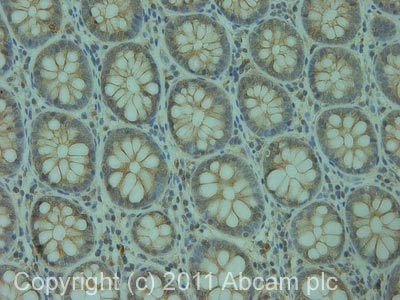 Immunohistochemistry (Formalin/PFA-fixed paraffin-embedded sections) - Anti-CDCP1 antibody (ab1377)